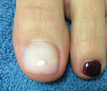 Finally A Cosmetic Approach To Restore The Healthy Appearance Of Damaged Toenail That Has Become Thick Flakey Or Discolored