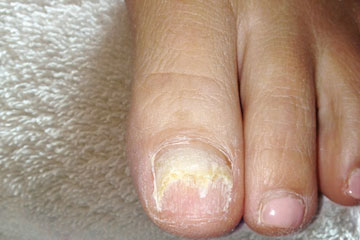 Cosmetic Nail Repair - Solana Beach, CA Podiatrist
